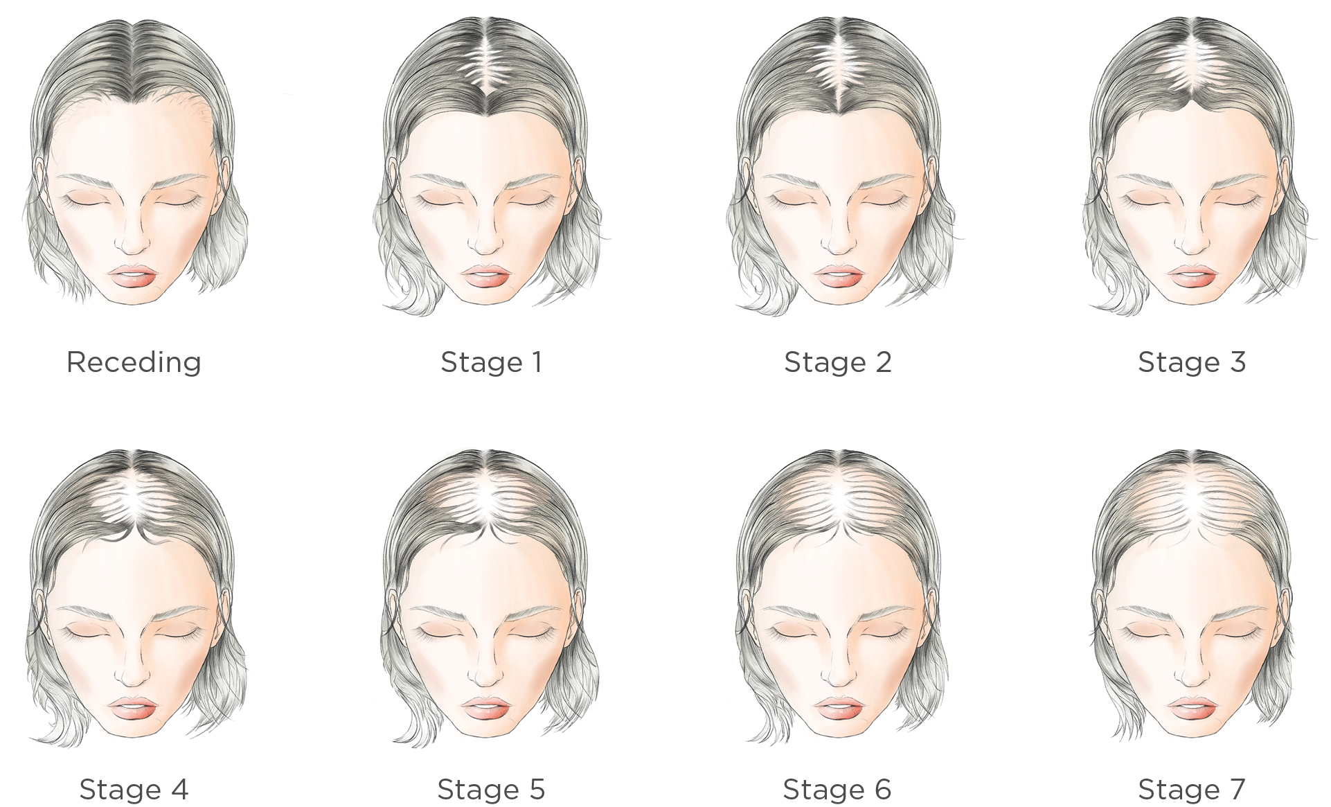 RW-Transformations-Hair-Loss-Stages-Bg